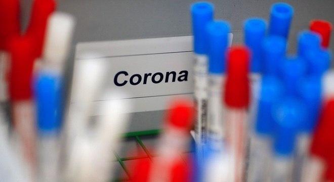 foto de Anvisa aprova testes rápidos para covid-19 em farmácias